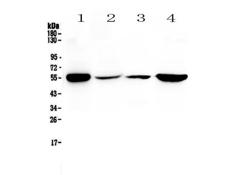 Western Blotting (WB) image for anti-Glutathione Reductase (GSR) (AA 256-522) antibody (ABIN5693151)