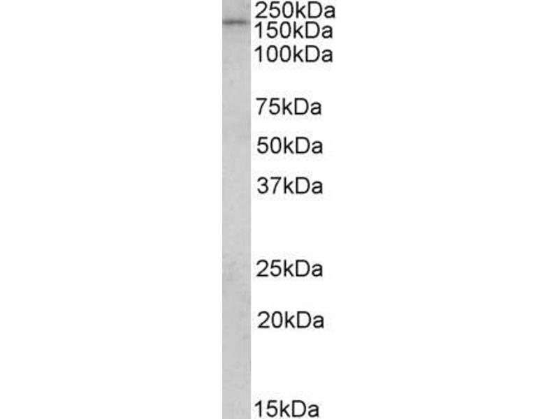 Western Blotting (WB) image for anti-CLIP1 antibody (CAP-GLY Domain Containing Linker Protein 1) (ABIN2491797)