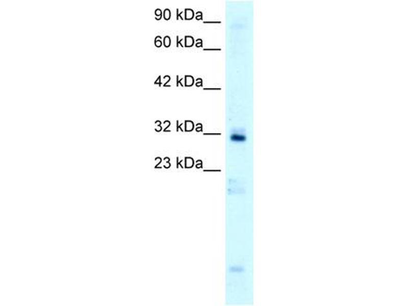 Western Blotting (WB) image for anti-Homeobox B9 (HOXB9) (N-Term) antibody (ABIN182626)