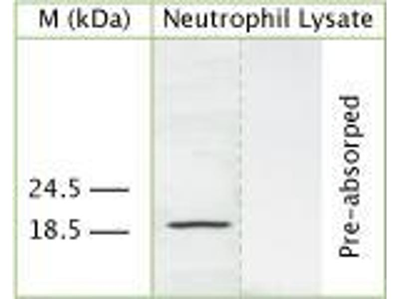 Western Blotting (WB) image for anti-Cathelicidin antibody (Cathelicidin Antimicrobial Peptide) (ABIN350185)