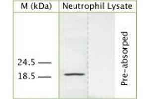 anti-Cathelicidin Antimicrobial Peptide (cAMP) antibody (2)