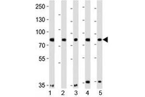 Image no. 3 for anti-Insulin Receptor-Related Receptor (INSRR) (AA 668-702) antibody (ABIN3029735)