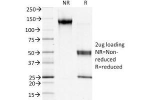 Image no. 7 for anti-S100 Calcium Binding Protein A4 (S100A4) (AA 1-200) antibody (ABIN6940541)