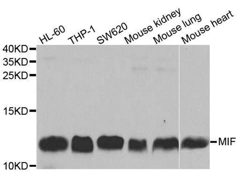 Western Blotting (WB) image for anti-Macrophage Migration Inhibitory Factor (Glycosylation-Inhibiting Factor) (MIF) antibody (ABIN3021945)