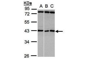 Image no. 2 for anti-Ankyrin Repeat and SOCS Box Containing 5 (ASB5) (Center) antibody (ABIN2856488)
