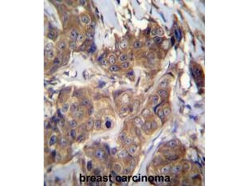 Immunohistochemistry (Paraffin-embedded Sections) (IHC (p)) image for anti-ATPase, H+ Transporting, Lysosomal 56/58kDa, V1 Subunit B1 (ATP6V1B1) (AA 471-501), (C-Term) antibody (ABIN950570)