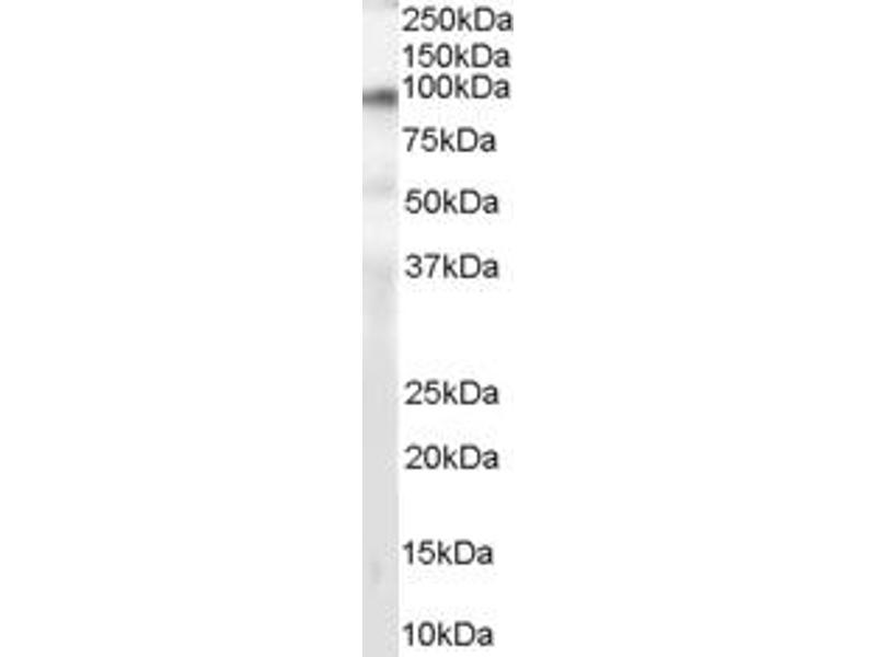 Western Blotting (WB) image for anti-Sphingosine Kinase 1 (SPHK1) (C-Term) antibody (ABIN257695)