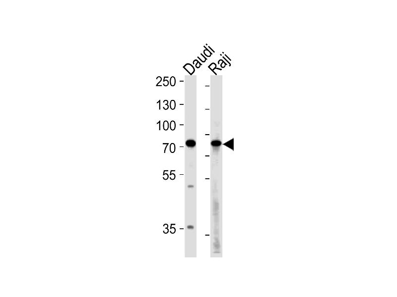 Western Blotting (WB) image for anti-Germ Cell Associated 2 (Haspin) (GSG2) (AA 323-352), (Center) antibody (ABIN1882168)