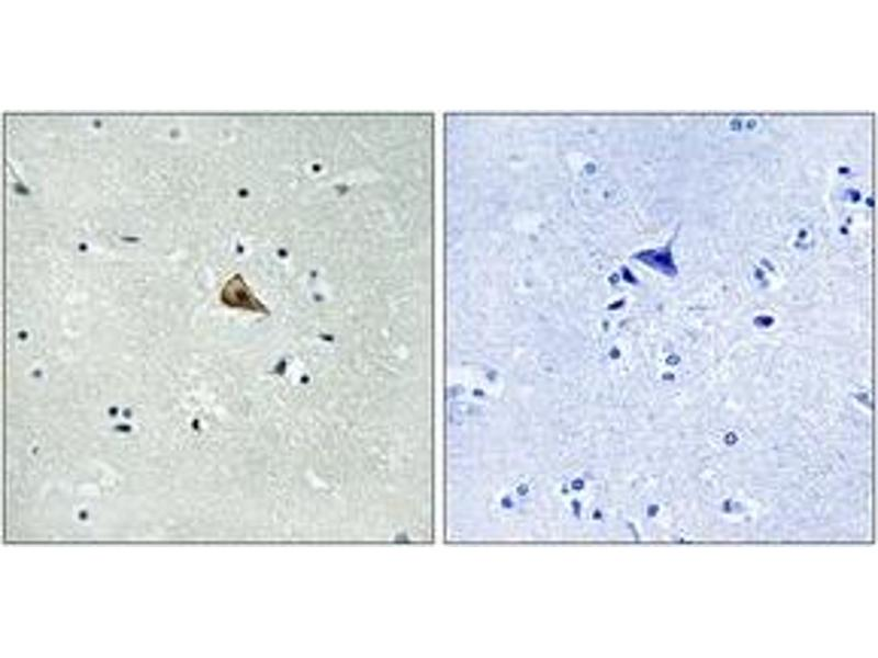 Immunohistochemistry (IHC) image for anti-TRKA antibody (Neurotrophic Tyrosine Kinase, Receptor, Type 1) (pTyr701) (ABIN1532031)
