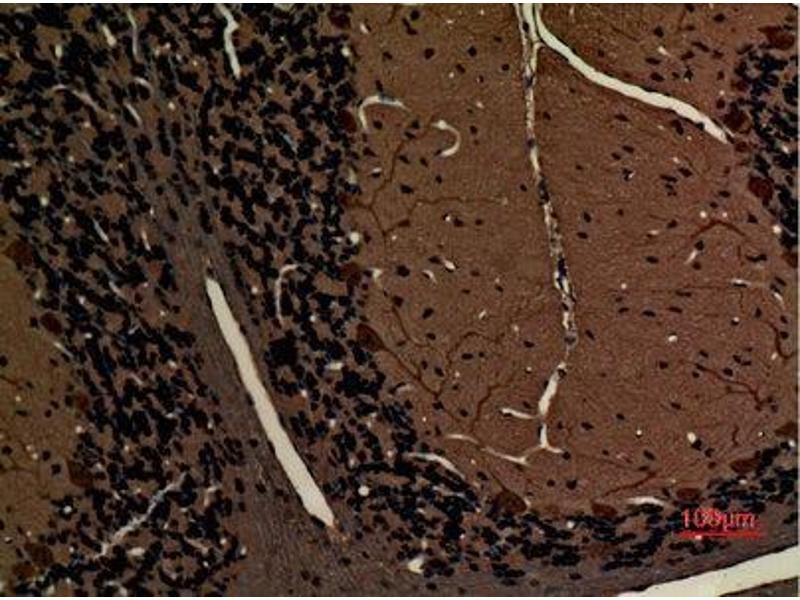 Immunohistochemistry (IHC) image for anti-Myosin VI (MYO6) (N-Term) antibody (ABIN3187633)