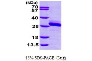 Image no. 1 for Ras-related Protein Ral-A (rala) (AA 1-203) protein (His tag) (ABIN667292)