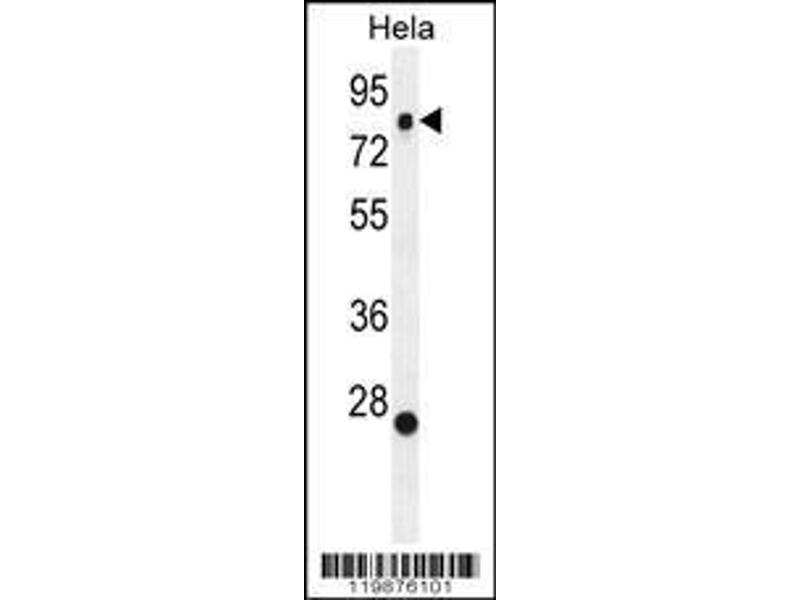 Western Blotting (WB) image for anti-Slingshot Homolog 3 (Drosophila) (SSH3) (AA 575-602), (C-Term) antibody (ABIN655643)