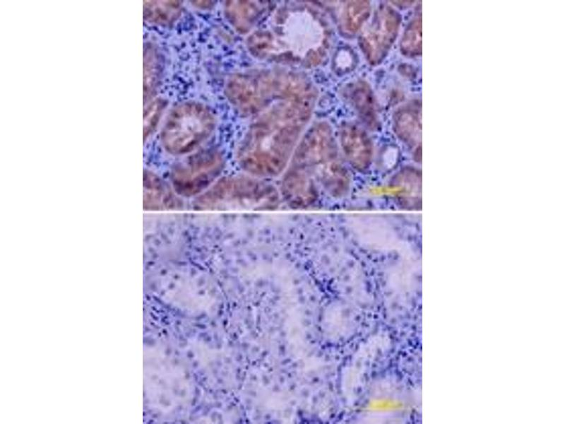 image for anti-VEGFR2 antibody (Kinase insert Domain Receptor (A Type III Receptor tyrosine Kinase)) (ABIN958173)