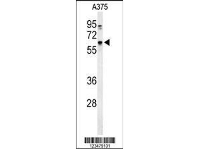 Western Blotting (WB) image for anti-Dopachrome Tautomerase (DCT) (AA 62-89), (N-Term) antibody (ABIN653914)