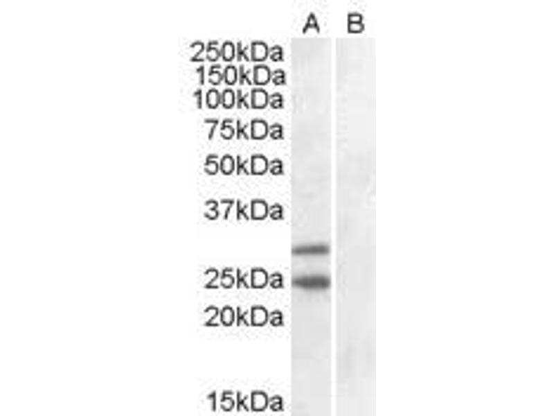 image for anti-SOCS1 antibody (Suppressor of Cytokine Signaling 1) (C-Term) (ABIN374072)