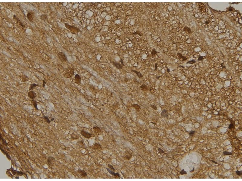 Image no. 1 for anti-V-Yes-1 Yamaguchi Sarcoma Viral Related Oncogene Homolog (LYN) (pTyr193) antibody (ABIN6269829)