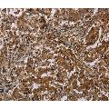 anti-Mitochondrial Fission Factor (MFF) antibody