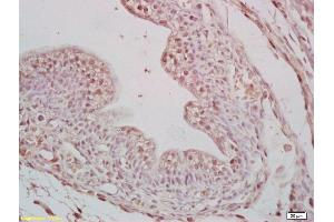 Image no. 3 for anti-Cell Division Cycle 25 Homolog B (S. Pombe) (CDC25B) (AA 128-171), (pSer149) antibody (ABIN1386839)