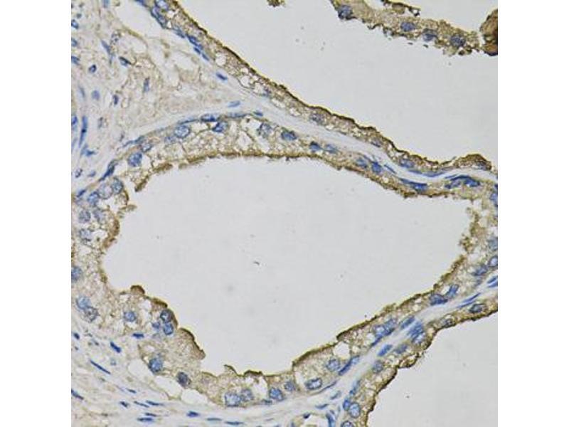 Image no. 2 for anti-Lipocalin 1 (LCN1) antibody (ABIN6572032)