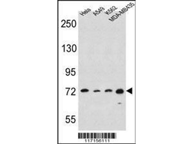Western Blotting (WB) image for anti-Arachidonate 15-Lipoxygenase (ALOX15) (AA 610-643), (C-Term) antibody (ABIN392383)