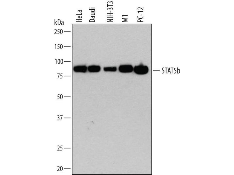 Western Blotting (WB) image for anti-Signal Transducer and Activator of Transcription 5B (STAT5B) (AA 777-787) antibody (ABIN4900487)