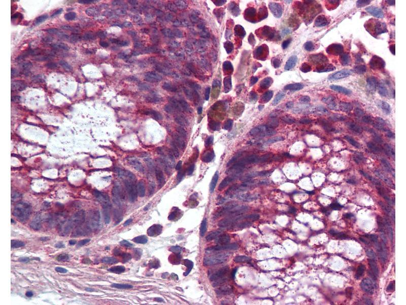 Immunohistochemistry (IHC) image for anti-NADPH Oxidase 1 (NOX1) (C-Term) antibody (ABIN297329)
