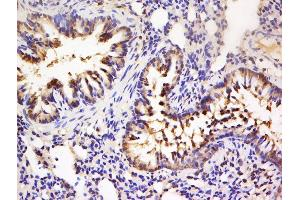Immunohistochemistry (Paraffin-embedded Sections) (IHC (p)) image for anti-Ribosomal Protein S6 Kinase, 90kDa, Polypeptide 5 (RPS6KA5) (pSer360) antibody (ABIN743978)