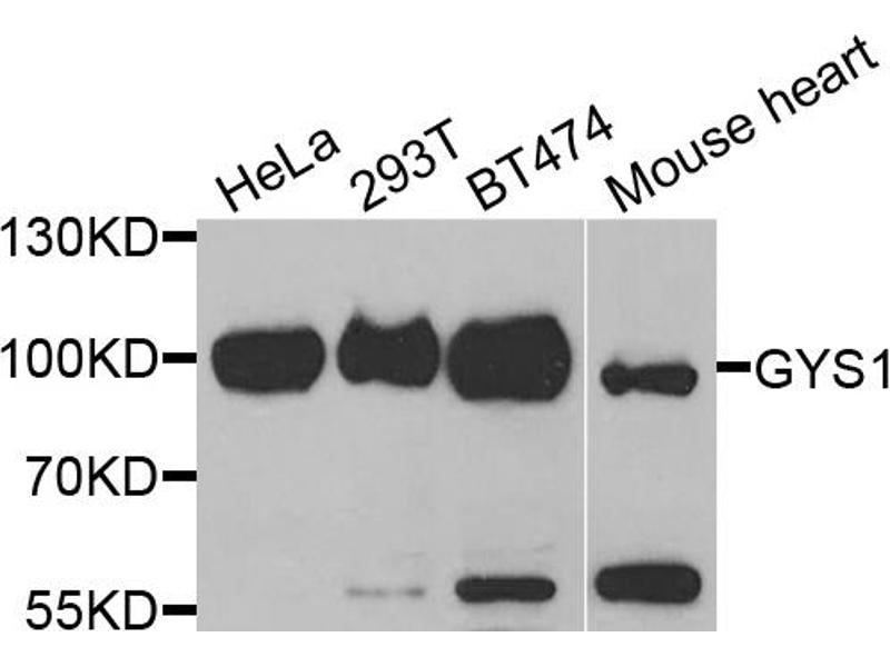 Western Blotting (WB) image for anti-Glycogen Synthase 1 (Muscle) (GYS1) antibody (ABIN1872925)
