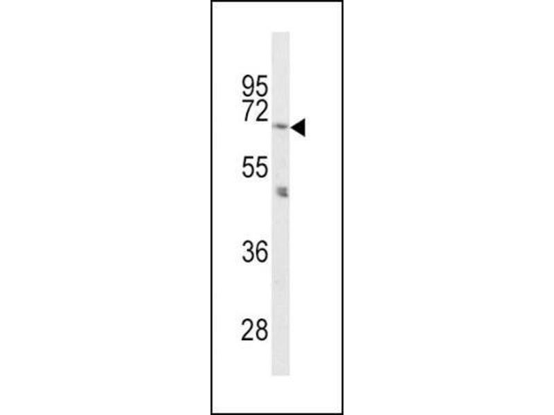 Western Blotting (WB) image for anti-Proprotein Convertase Subtilisin/kexin Type 2 (PCSK2) (N-Term) antibody (ABIN4347751)