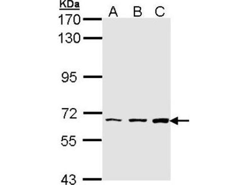 Western Blotting (WB) image for anti-PIP5K1A Antikörper (Phosphatidylinositol-4-Phosphate 5-Kinase, Type I, alpha) (Center) (ABIN4345709)