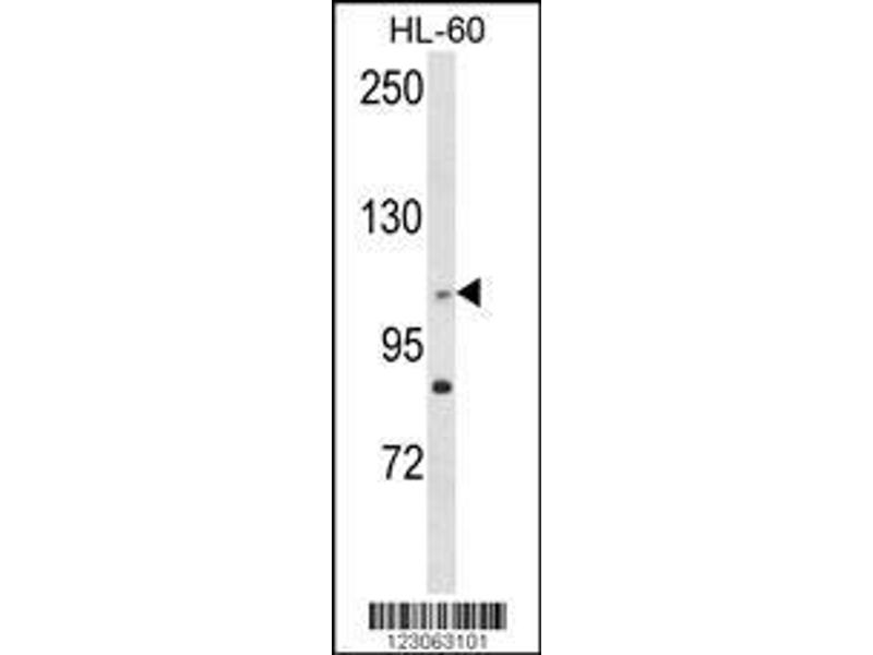 Western Blotting (WB) image for anti-Centrosomal Protein 128kDa (CEP128) (AA 906-935), (Center) antibody (ABIN652929)