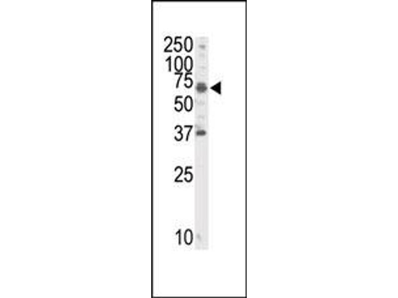 image for anti-RYK Receptor-Like Tyrosine Kinase (RYK) (C-Term) antibody (ABIN359938)