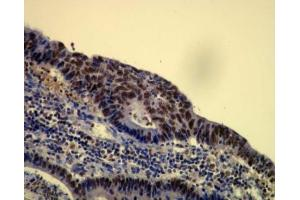 Immunohistochemistry (Paraffin-embedded Sections) (IHC (p)) image for anti-Chromatin Assembly Factor 1, Subunit B (p60) (CHAF1B) (C-Term) antibody (ABIN4262981)
