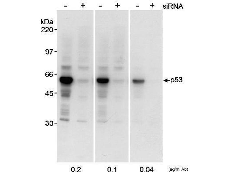 Western Blotting (WB) image for anti-p53 antibody (Tumor Protein P53) (AA 50-100) (ABIN152309)