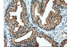 Image no. 2 for anti-Ran GTPase Activating Protein 1 (RANGAP1) antibody (ABIN2730461)