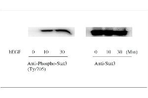 Image no. 6 for Signal Transducer and Activator of Transcription 3 (Acute-Phase Response Factor) (STAT3) ELISA Kit (ABIN1981839)