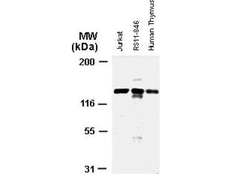 Western Blotting (WB) image for anti-APAF1 antibody (Apoptotic Peptidase Activating Factor 1) (ABIN252079)