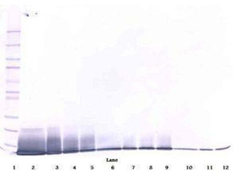 image for anti-Interleukin 13 (IL13) antibody (ABIN465389)
