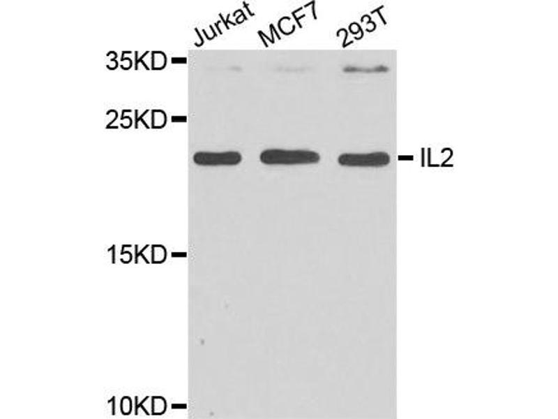 Western Blotting (WB) image for anti-IL2 antibody (Interleukin 2) (ABIN1873207)