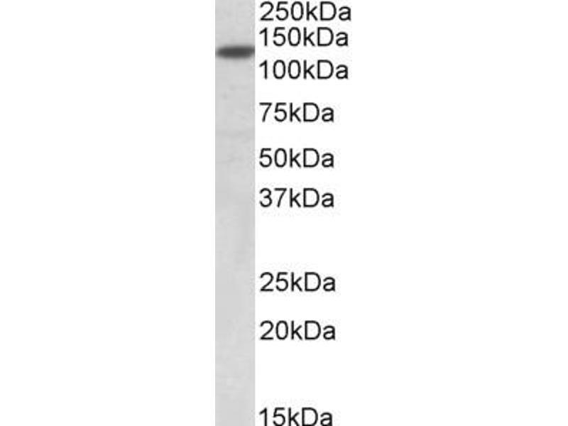 Western Blotting (WB) image for anti-SIRT1 antibody (Sirtuin 1) (AA 577-590) (ABIN2502803)