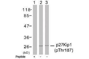 image for anti-CDKN1B antibody (Cyclin-Dependent Kinase Inhibitor 1B (p27, Kip1)) (pThr187) (ABIN196946)