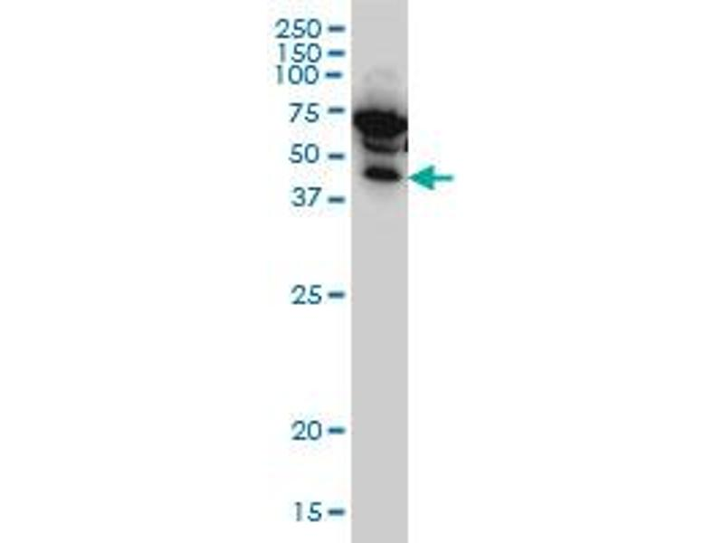 Western Blotting (WB) image for anti-IKBKG antibody (Inhibitor of kappa Light Polypeptide Gene Enhancer in B-Cells, Kinase gamma) (AA 1-110) (ABIN563665)