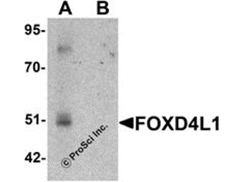 Western Blotting (WB) image for anti-Forkhead Box D4-Like 1 (FOXD4L1) (C-Term) antibody (ABIN1030401)