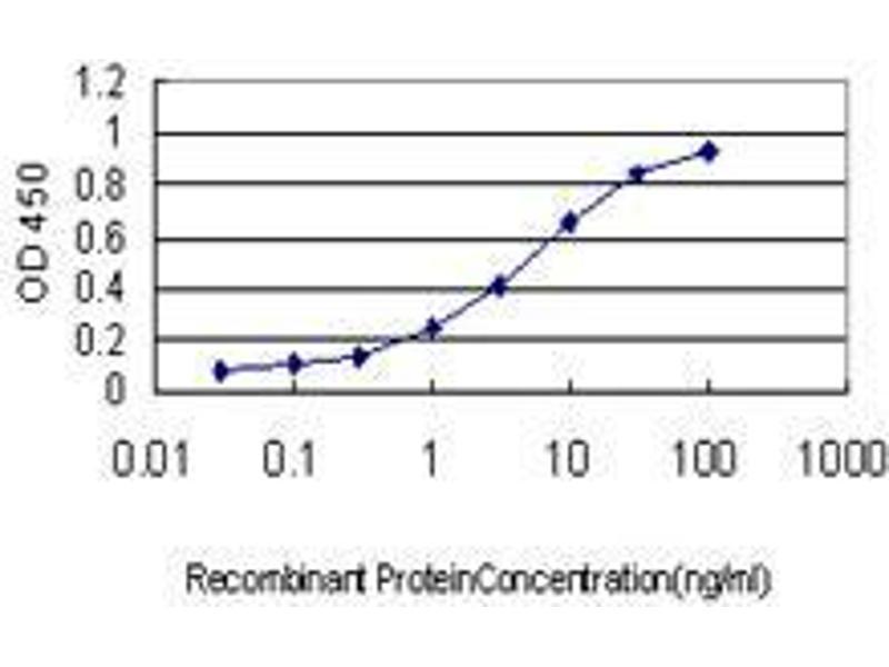 Immunohistochemistry (IHC) image for anti-F-Box Protein 22 (FBXO22) (AA 1-300) antibody (ABIN393870)