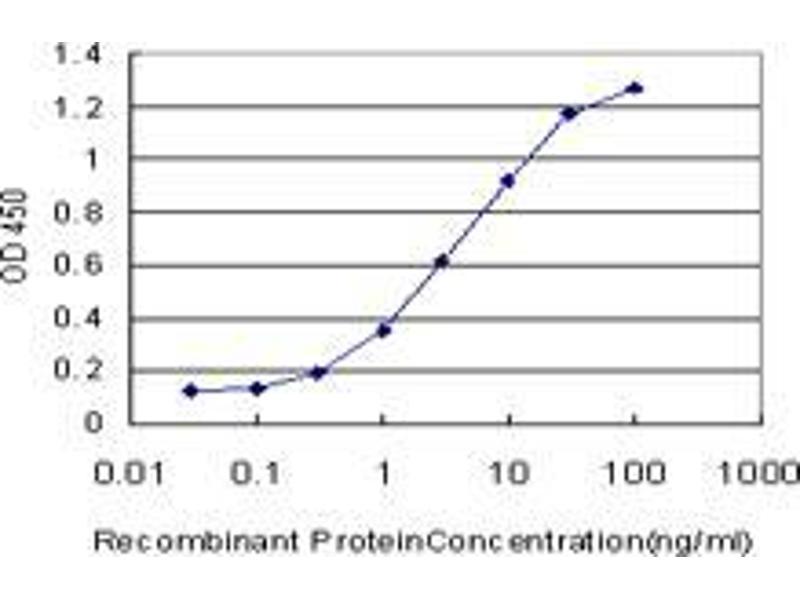 Immunohistochemistry (IHC) image for anti-LIM Domain Binding 3 Protein antibody (LIM Domain Binding 3) (AA 1-284) (ABIN393692)