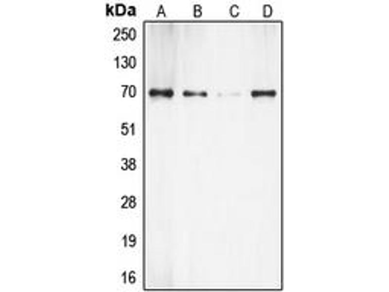 Western Blotting (WB) image for anti-RPS6KB1 antibody (Ribosomal Protein S6 Kinase, 70kDa, Polypeptide 1) (C-Term) (ABIN2705216)