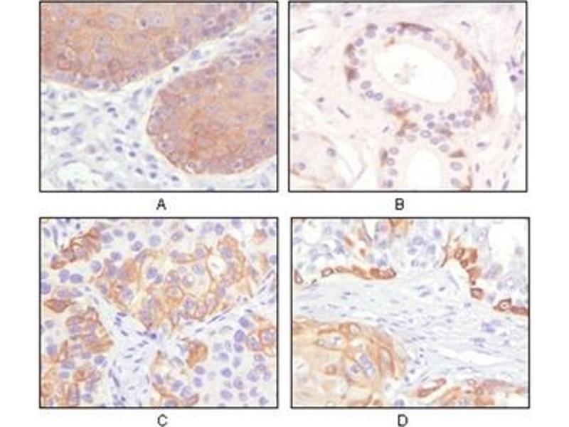 Immunohistochemistry (IHC) image for anti-Keratin 5 (KRT5) antibody (ABIN1106931)