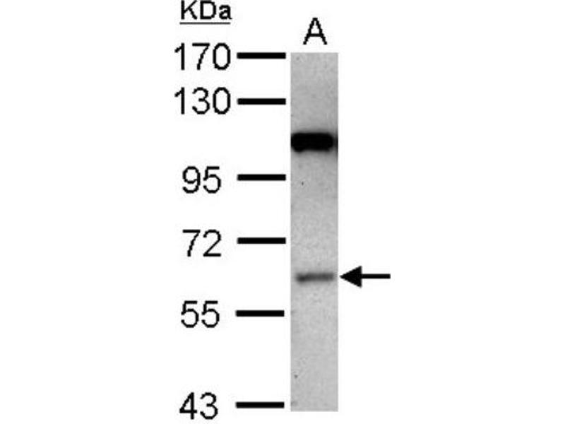 Western Blotting (WB) image for anti-MAP3K3 antibody (Mitogen-Activated Protein Kinase Kinase Kinase 3) (Center) (ABIN4333539)