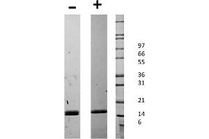 Image no. 2 for CD40 Ligand (CD40LG) protein (ABIN6699585)