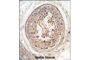 Image no. 1 for anti-Sperm Associated Antigen 9 (SPAG9) (AA 603-632) antibody (ABIN5533438)